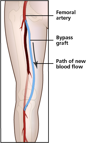 femoral artery blood flow - 282×466
